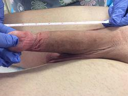 After Penis Lengthening