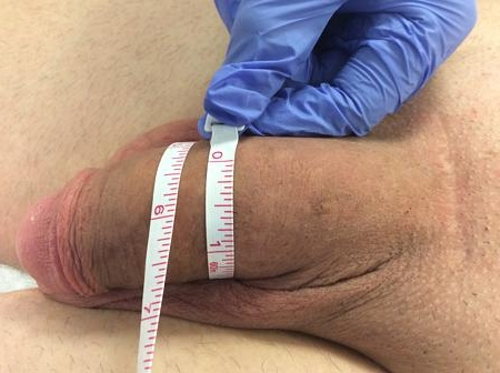 After Penis Widening