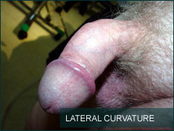 Lateral Curvature